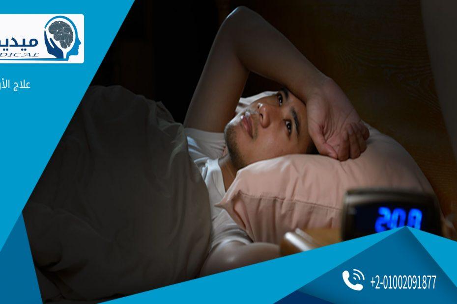 اسرع علاج للارق وقلة النوم بدون ادوية
